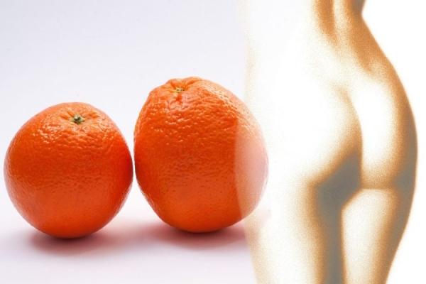 Подолати целюліт можна, — поради тернопільського косметолога